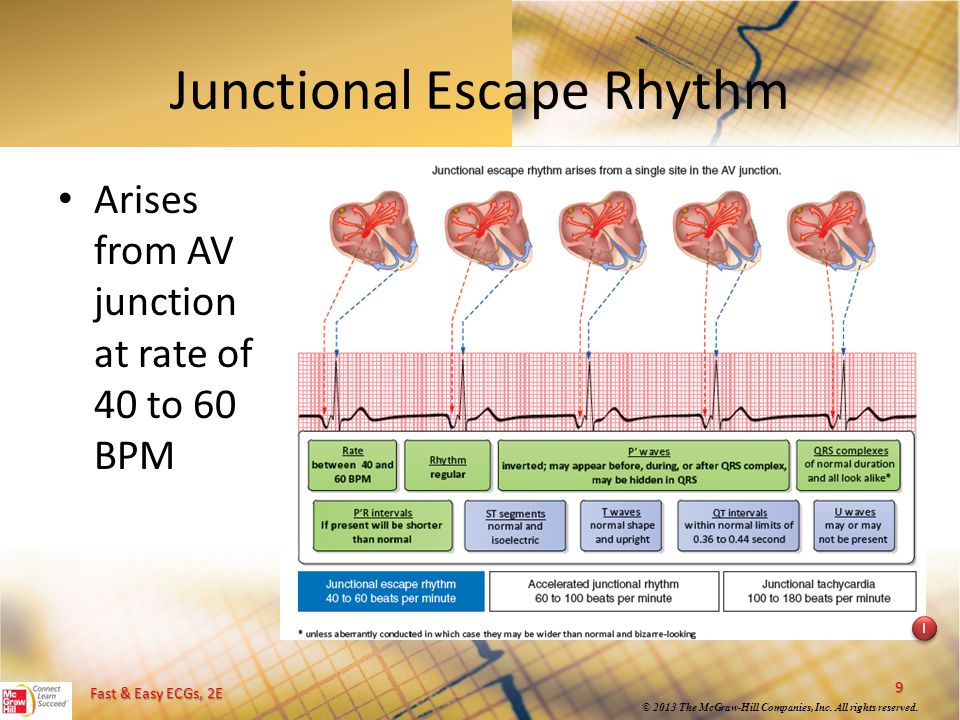 Junctional Escape Rhythm