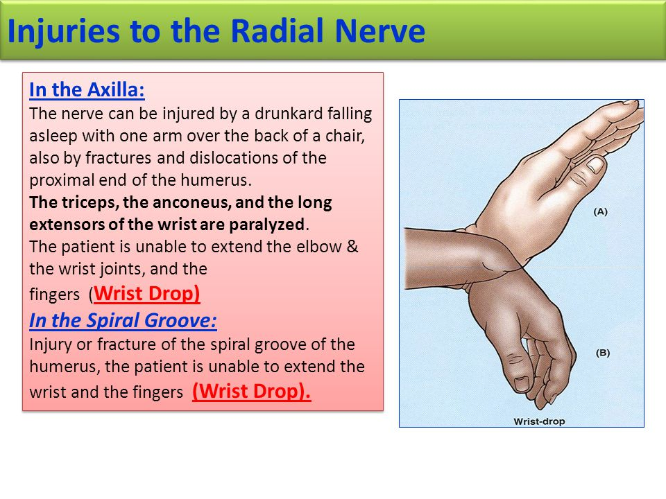 Injuries to the Radial Nerve