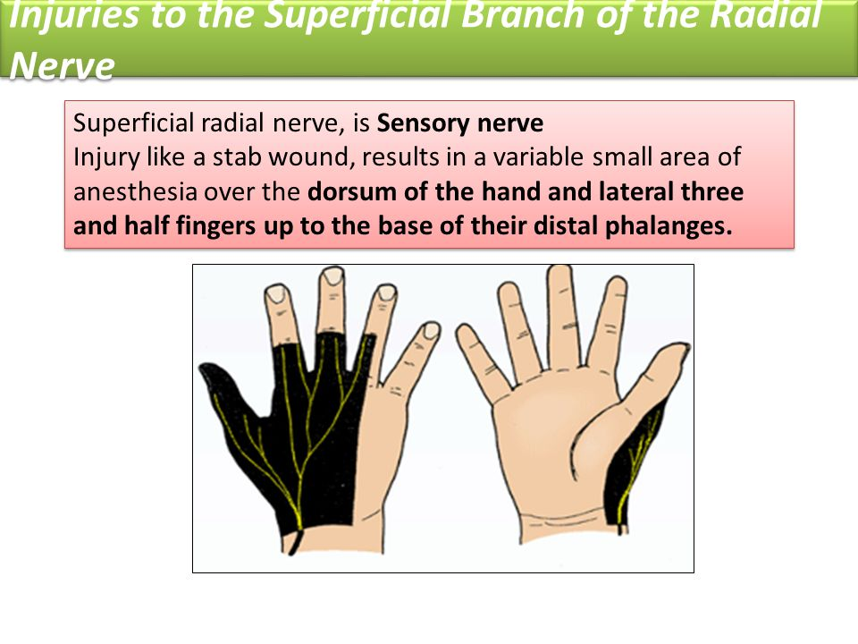 Injuries to the Superficial Branch of the Radial Nerve
