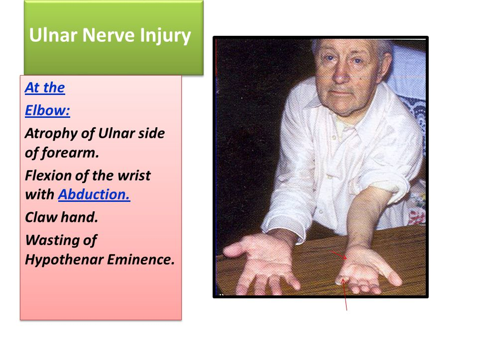 Ulnar Nerve Injury At the Elbow: Atrophy of Ulnar side of forearm.