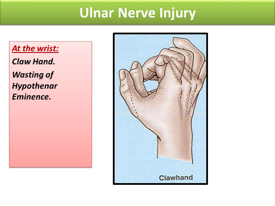 Ulnar Nerve Injury At the wrist: Claw Hand.
