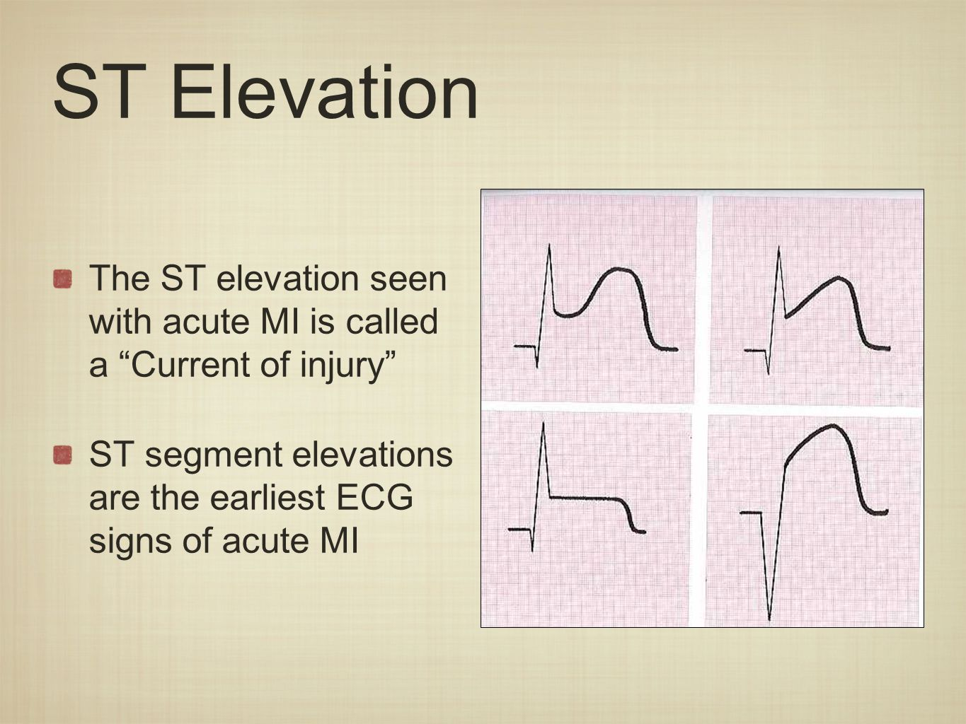 Myocardial Ishcemia And Infarction Ppt Download - Current elevation