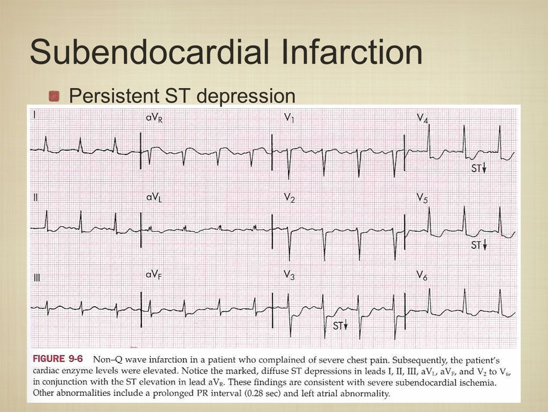 Signal Quality Analysis of Ambulatory Electrocardiograms ...