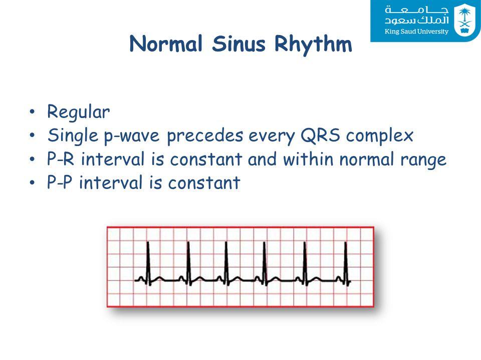cardiovascular system block cardiac arrhythmias