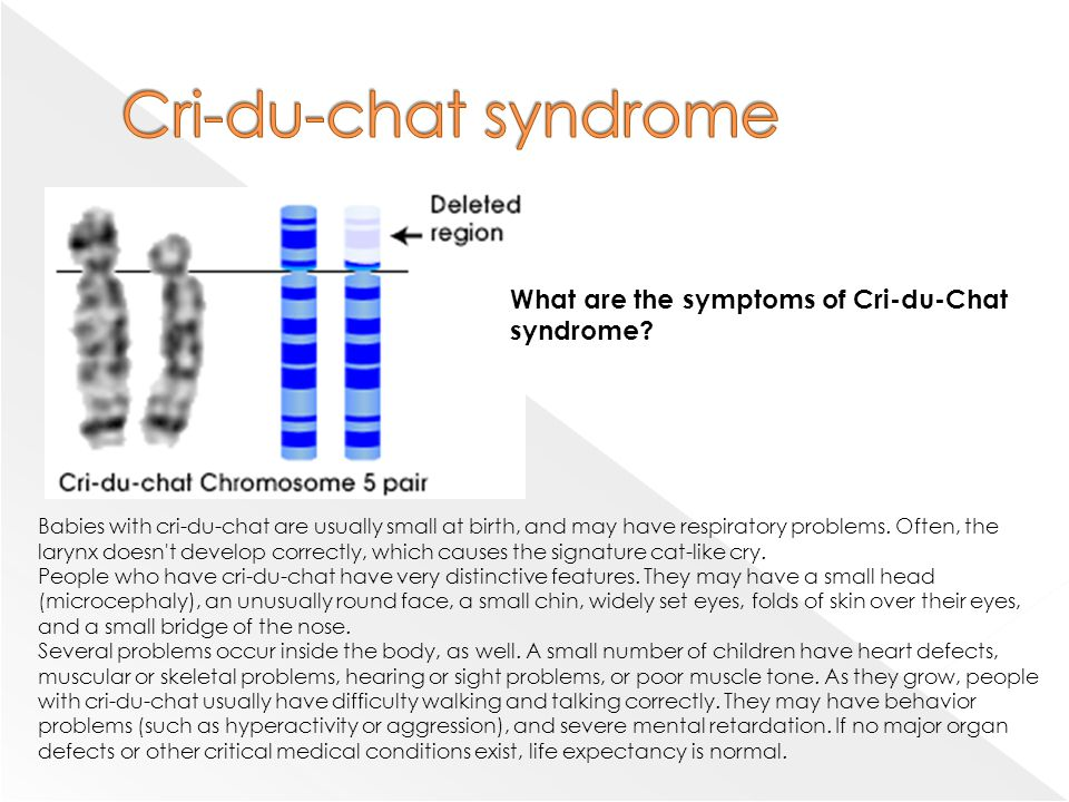 """an overview of the disability in cri du chat syndrome Cri du chat description: cri-du-chat is basically a genetic disease that causes """"faulty"""" development in the larynx the undeveloped larynx causes a """"cat-like cry"""" in toddlers and babies, which makes it difficult to diagnose the disease after toddlerhood."""