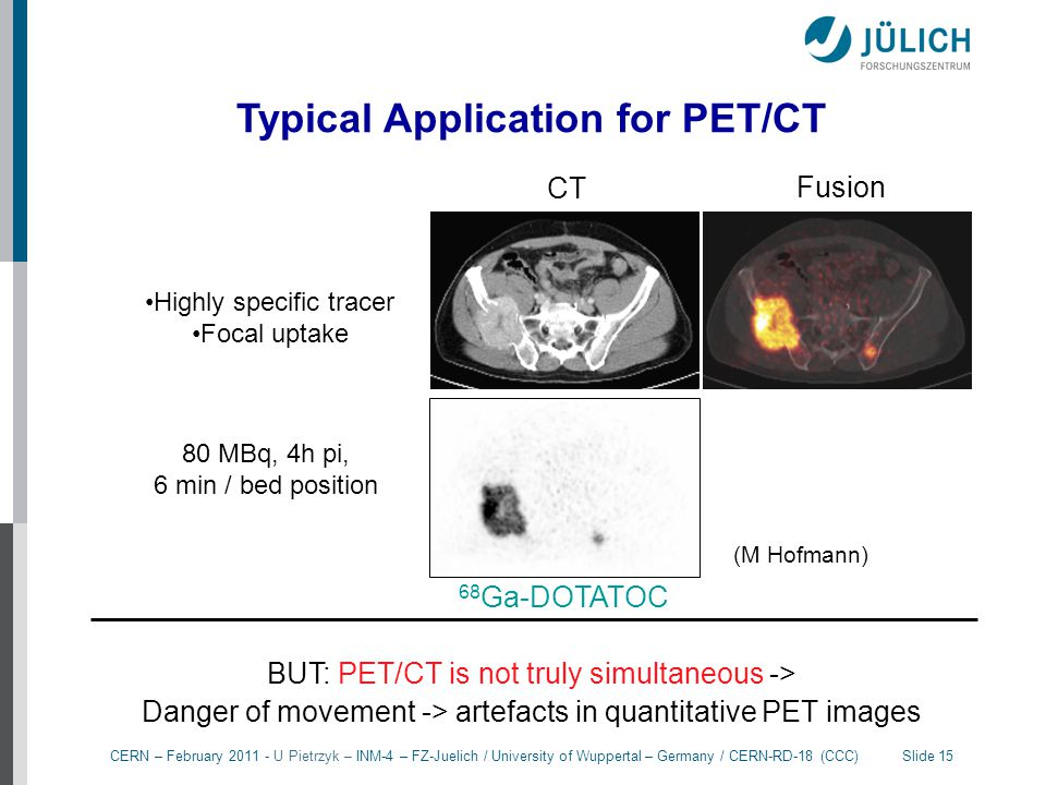 Typical Application for PET/CT