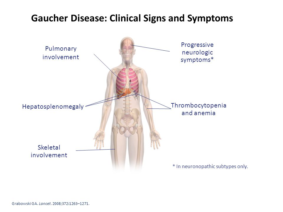 gaucher disease Gaucher disease (gd) is a genetic disorder in which glucocerebroside (a sphingolipid, also known as glucosylceramide) accumulates in cells and certain organs.