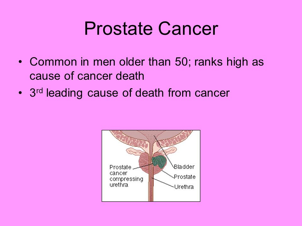 Prostate cancer cases to double by 2020: Study