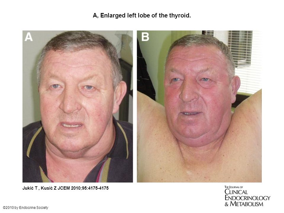 Esophageal Cancer Treatment PDQPatient Version