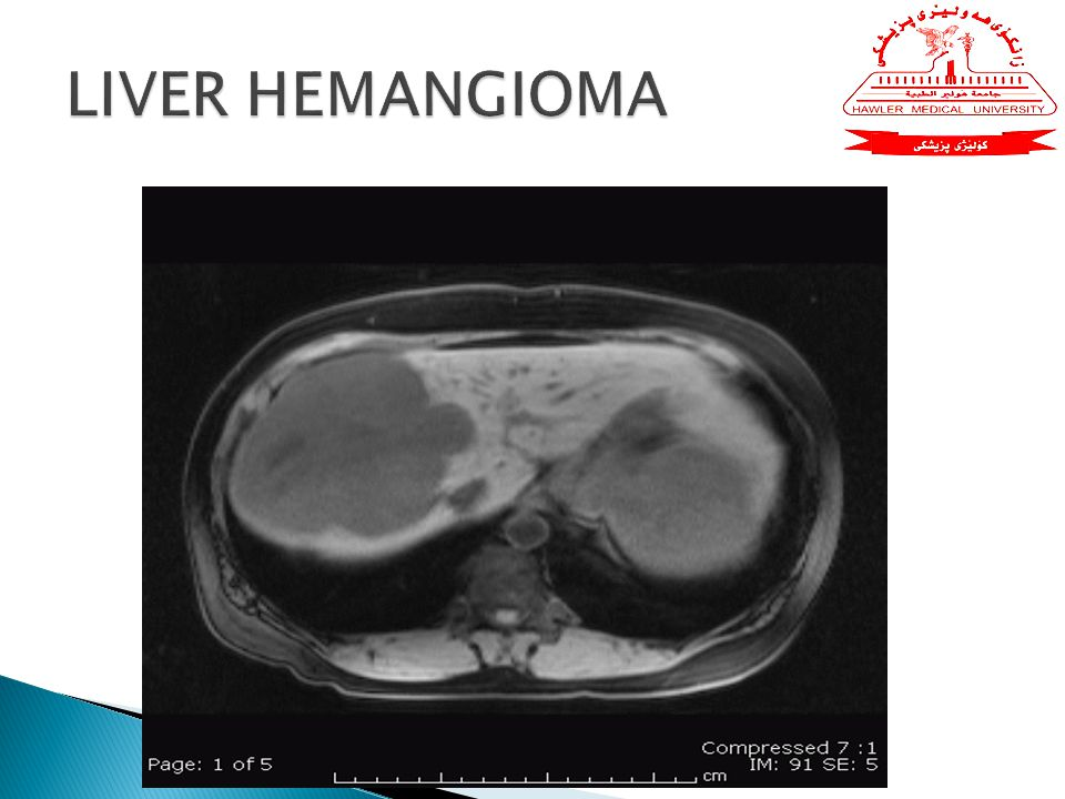 vaginal liver bleeding hemangioma