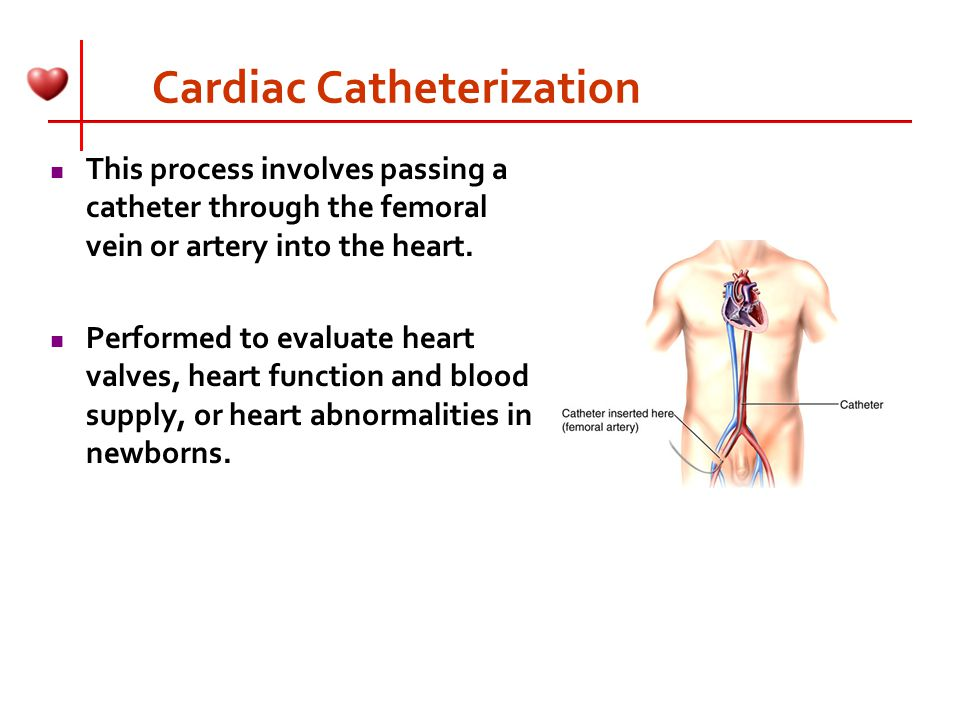 the process of cardiac catheterization Cardiac catheterization reseda ca - leo polosajian, md offers cardiac catheterization our practice serves reseda ca and surrounding areas.