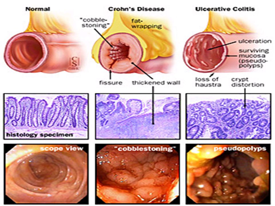 inflammatory bowel disease Syndrome, quality of life, and coping  disease (ibd) in remission demonstrate  bowel symptoms  pare the prevalence of ibs-like symptoms according to the.