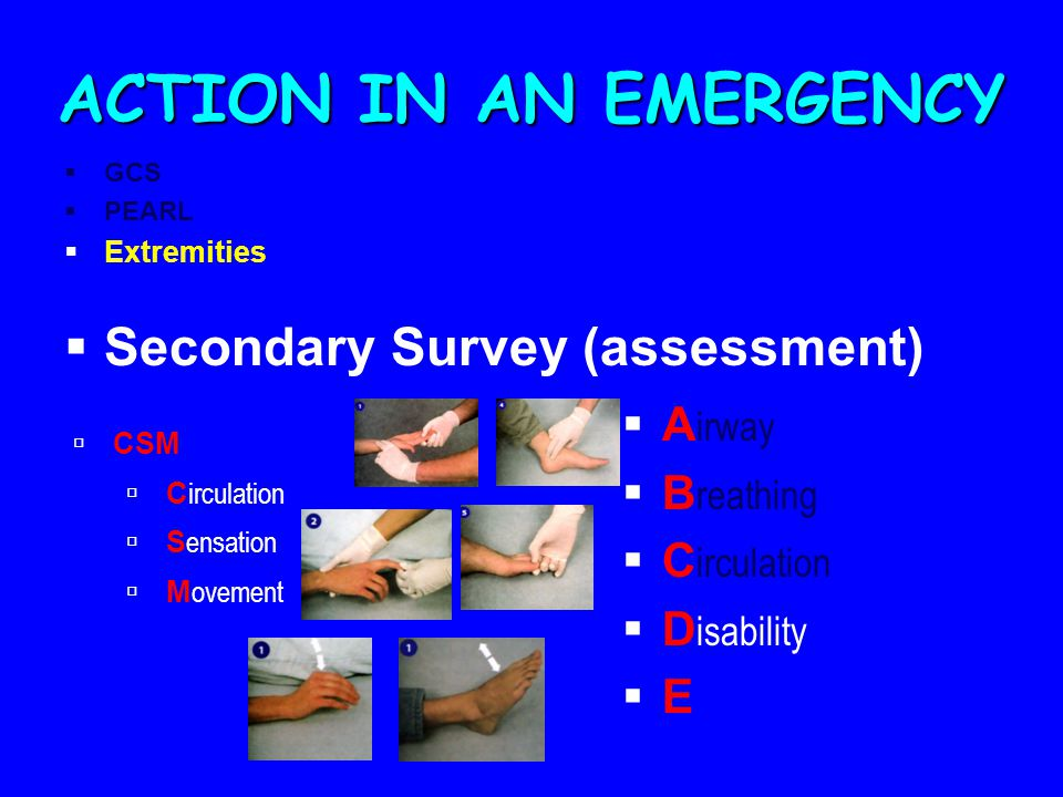 ACTION IN AN EMERGENCY Secondary Survey (assessment) Airway Breathing