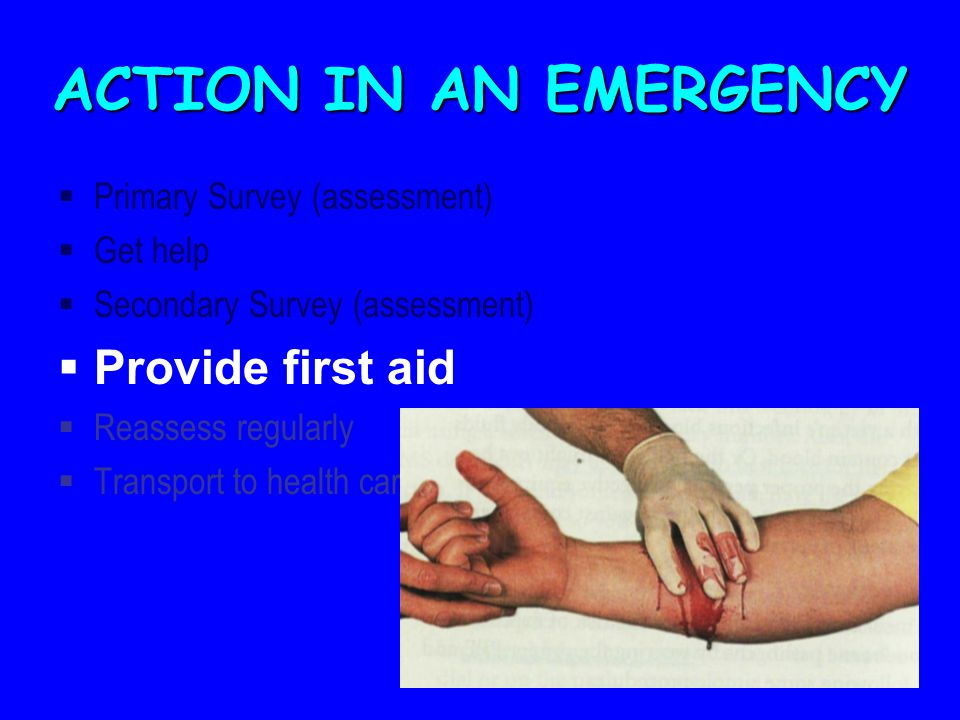 ACTION IN AN EMERGENCY Provide first aid Primary Survey (assessment)