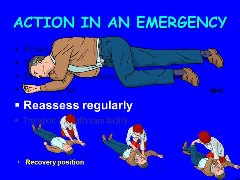 ACTION IN AN EMERGENCY Reassess regularly Primary Survey (assessment)