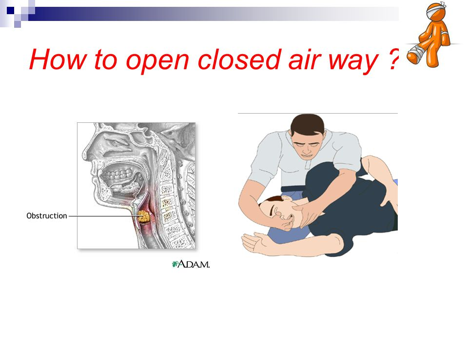 How to open closed air way