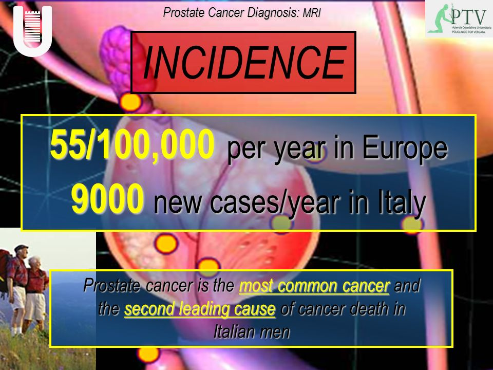 INCIDENCE 55/100,000 per year in Europe 9000 new cases/year in Italy