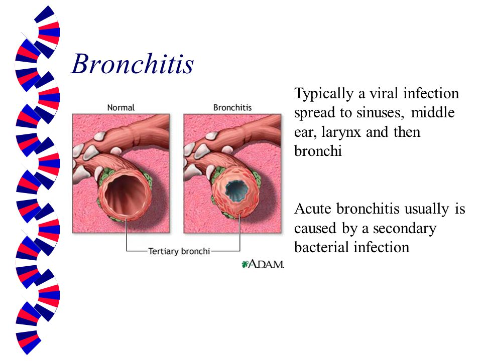 how to tell if bronchitis is viral or bacterial