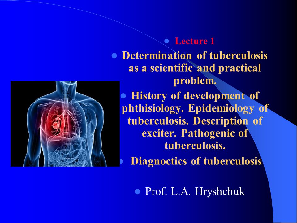 the epidemiology of tuberculosis Review article indian j med res 120, october 2004, pp 248-276 248 an increasing morbidity and mortality from tuberculosis (tb) in the near future is forecast for.