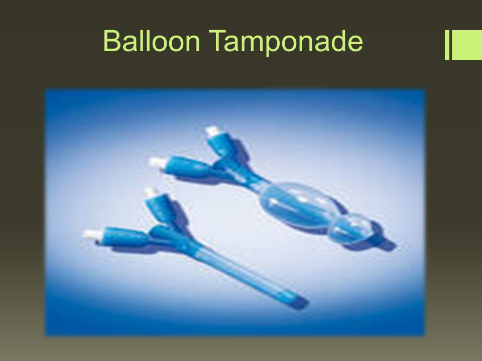 Nasal Balloon Tamponade DISORDERS OF THE UPPER...