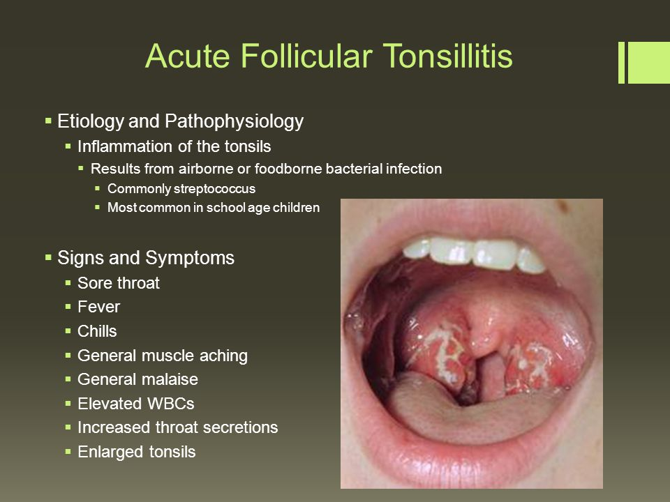 virus and viral tonsillitis differential Differential diagnosis if the sore throat is due to a viral infection the symptoms are usually milder and often related to the common cold if due to infection with coxsackievirus, small blisters develop on the tonsils and the roof of the mouth.