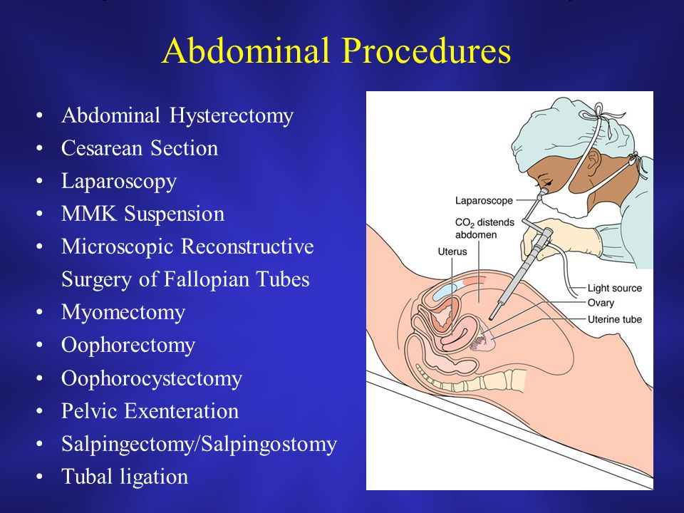 Introduction to Obstetrics & Gynecology - ppt video online ... Laparoscopic Hysterectomy Procedure