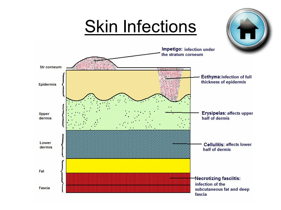 Infections and Infesta...