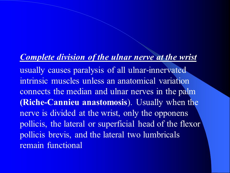 Complete division of the ulnar nerve at the wrist