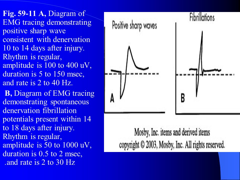 Fig A, Diagram of EMG tracing demonstrating positive sharp wave consistent with denervation 10 to 14 days after injury. Rhythm is regular, amplitude is 100 to 400 uV, duration is 5 to 150 msec, and rate is 2 to 40 Hz.