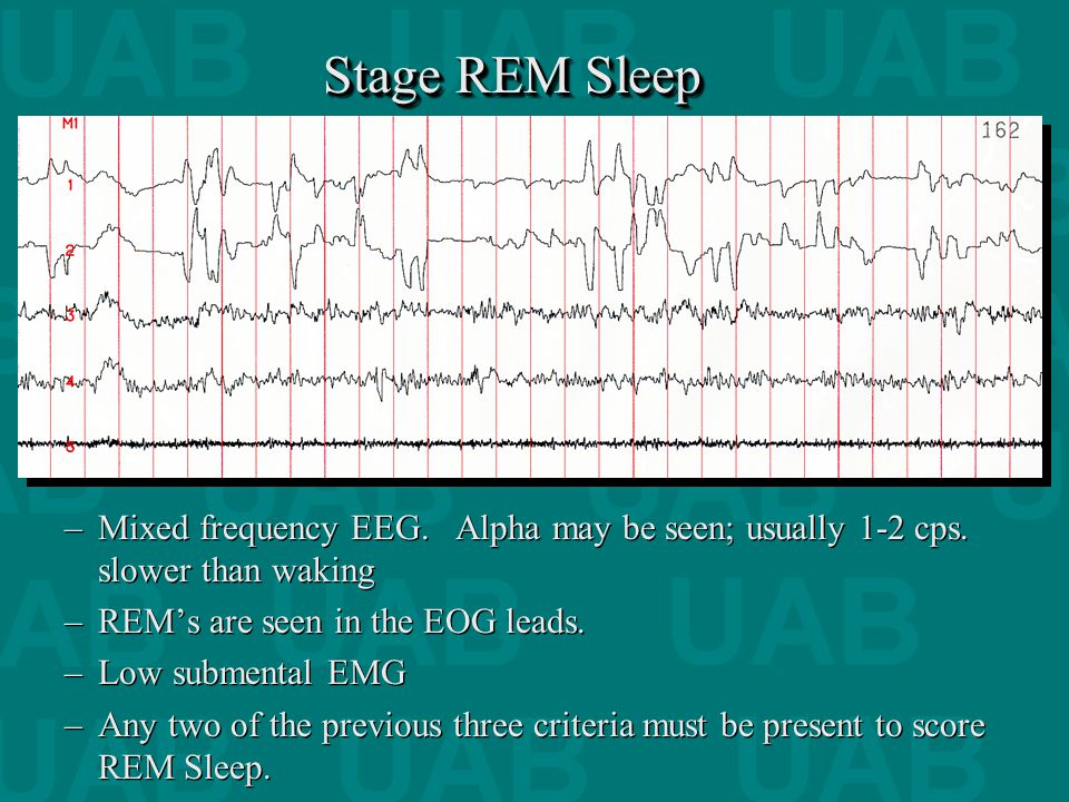 "stages of sleep and rem sleep Stage r is referred to as rem sleep or ""rapid eye movement"" sleep the first rem sleep episode generally occurs after 90-110 minutes of sleep, cycling about every 90 minutes thereafter rem sleep periods tend to be longer later in the night."