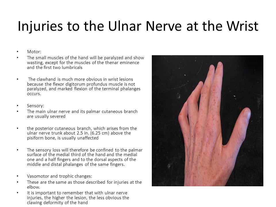 ulnar nerve palsy - Vatoz.atozdevelopment.co