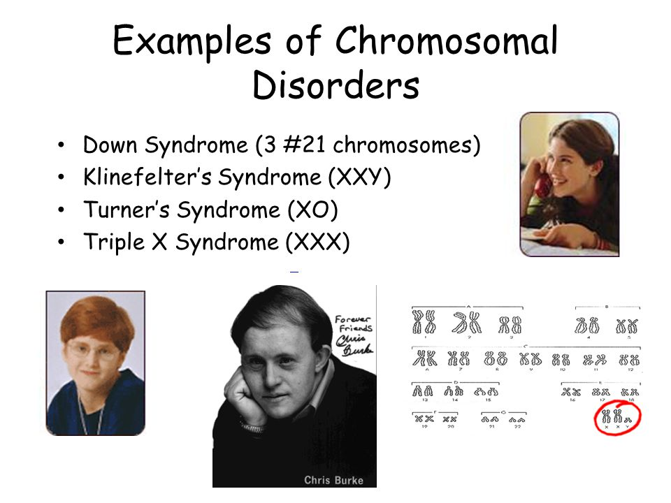Examples of Chromosomal Disorders