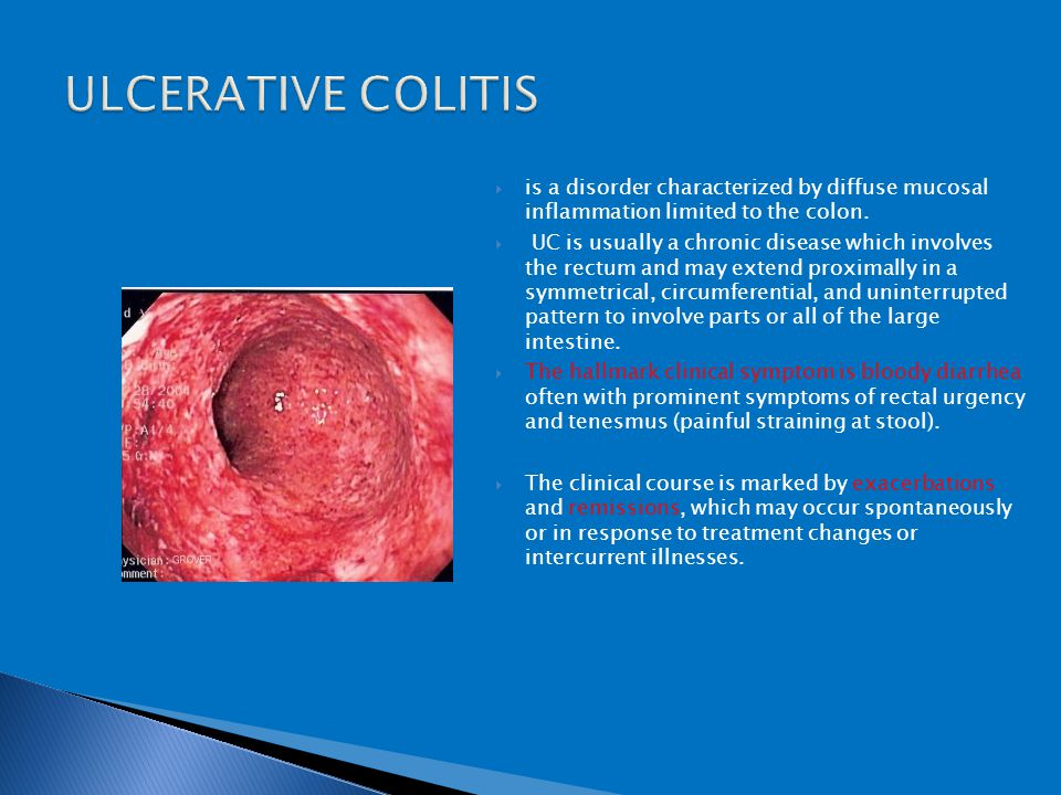 Conditions Presenting With Abdominal Pain Ppt Video