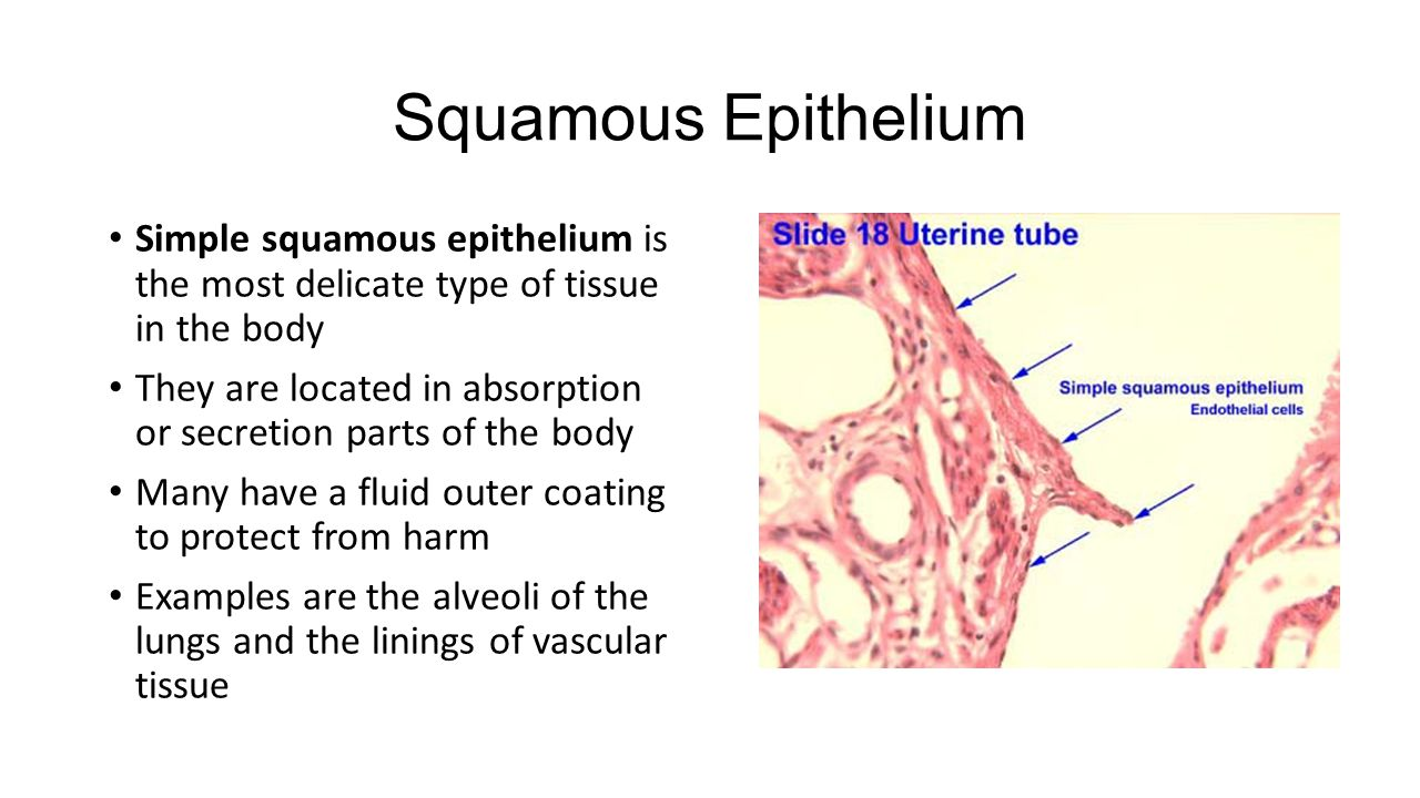 what is squamous epithelial tissue