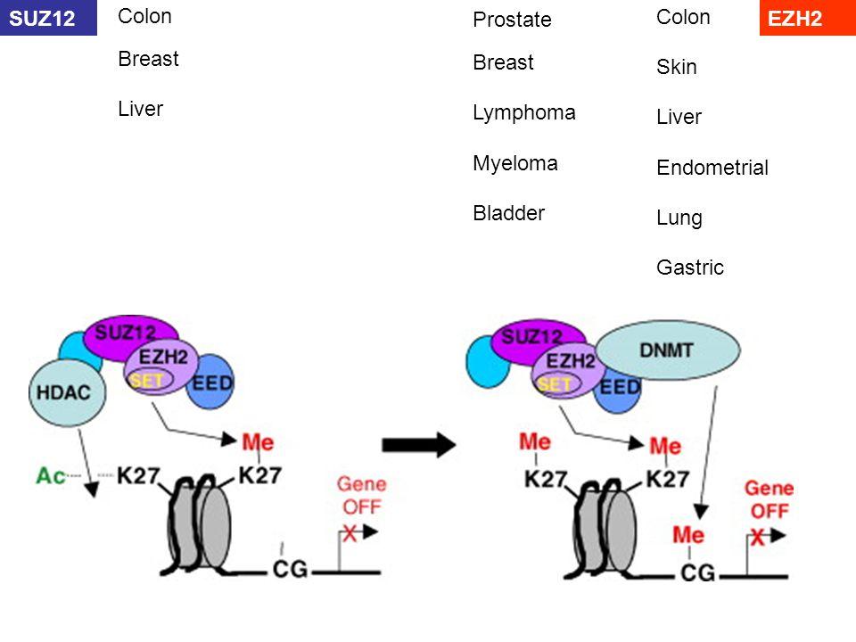 Colon SUZ12. Colon. Prostate. EZH2. Breast. Breast. Skin. Liver. Lymphoma. Liver. Myeloma.