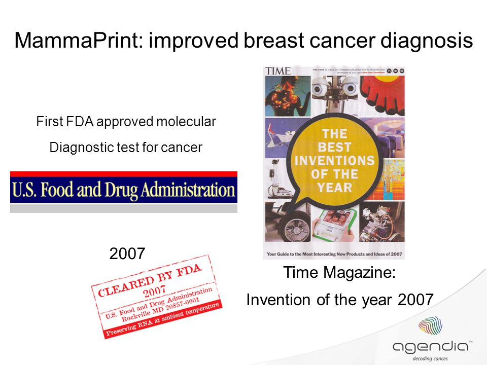 Breast cancer diagnosis 2007