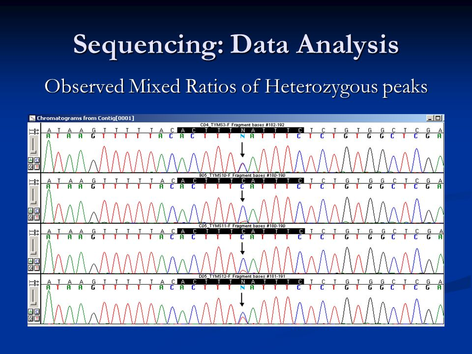 an analysis of the observed heterozygosity Loss of heterozygosity analysis at the nf1  a positive trend was observed between nf1 loh and histological grade.