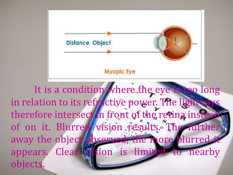 It is a condition where the eye is too long in relation to its refractive power.