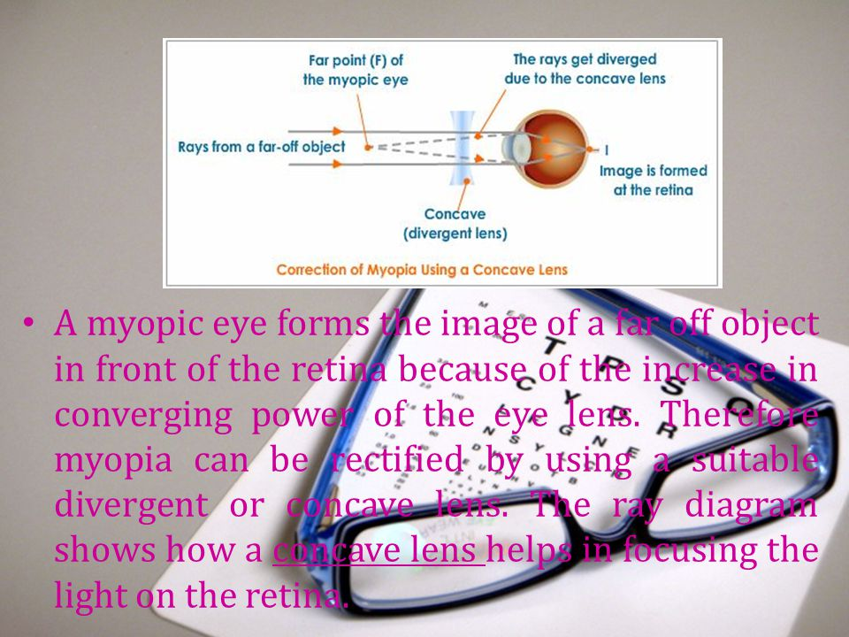 A myopic eye forms the image of a far off object in front of the retina because of the increase in converging power of the eye lens.