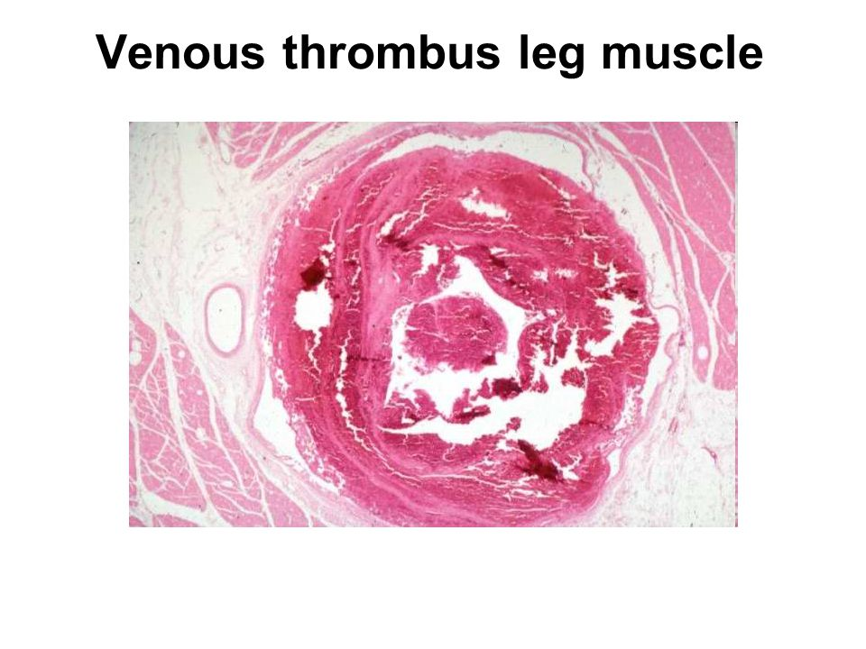 Thrombosis embolism infarction ppt video online download for Atrial mural thrombus