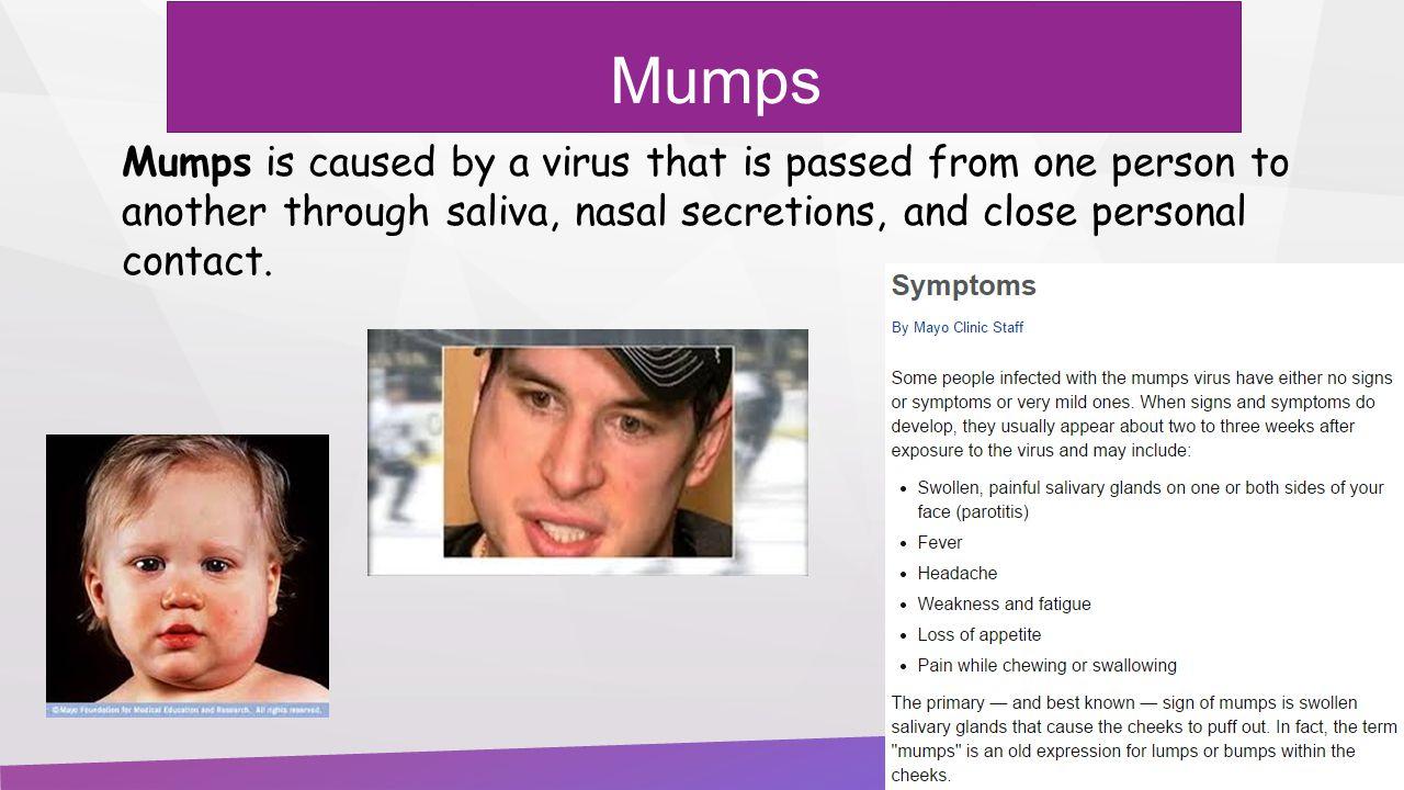understanding mumps disease in humans