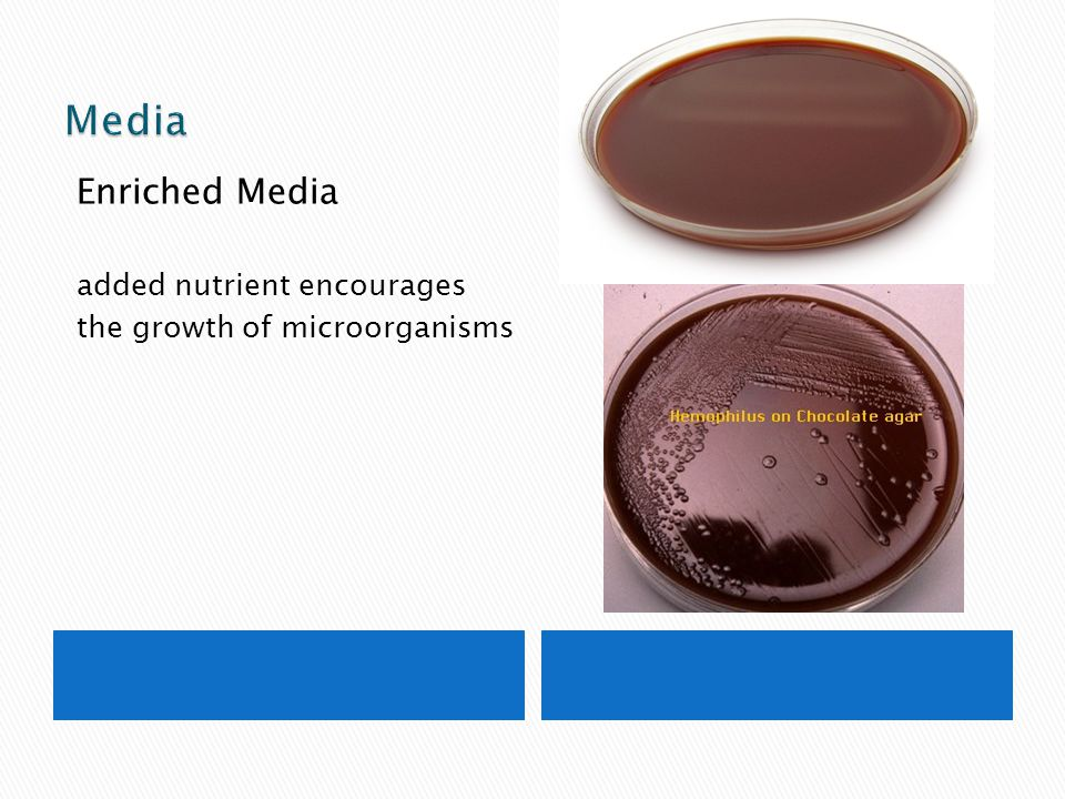 Media Enriched Media added nutrient encourages