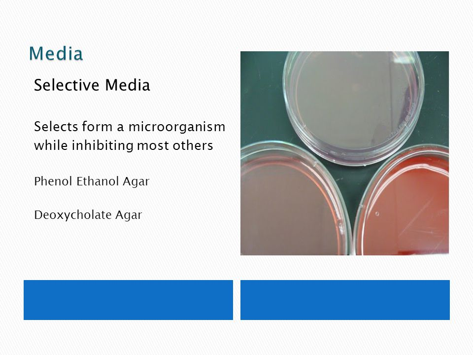 Media Selective Media Selects form a microorganism