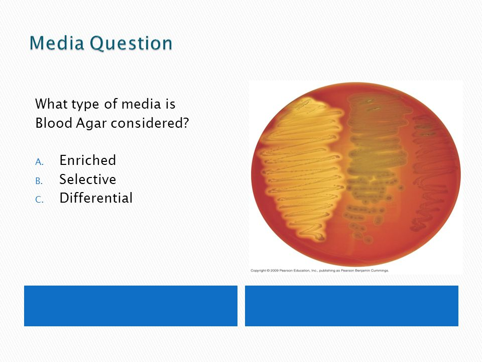 Media Question What type of media is Blood Agar considered Enriched