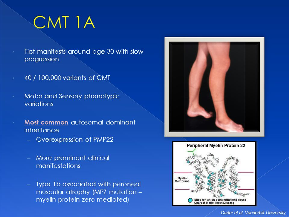 an analysis of charcot marie tooth disordercmt and its history If charcot-marie-tooth disease is suspected following a neurological examination, physicians conduct electrodiagnostic and genetic testing to confirm the diagnosis if those results are inconclusive, a nerve biopsy can confirm if the patient has charcot-marie-tooth disease, according to the national institute of neurological disorders and.