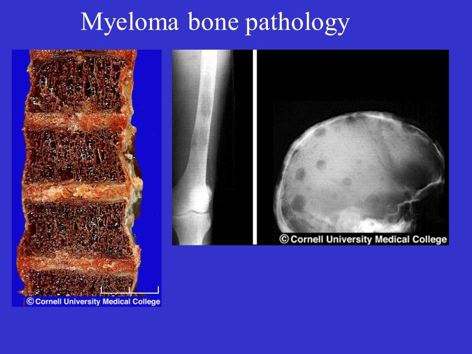 Myeloma bone pathology
