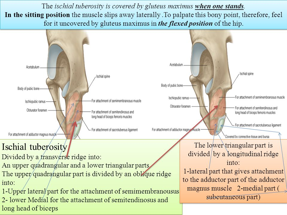 bones of the gluteal region - ppt video online download, Human Body