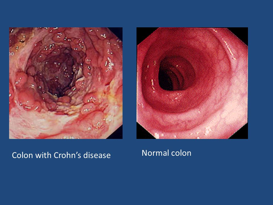 Anal fistulas and crohns disease look hot