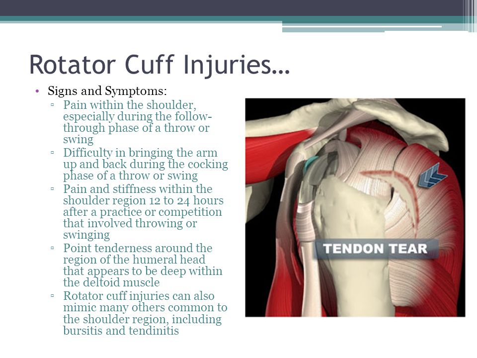 Injuries to a rotator cuff Research paper Help zhassignmentjzuf ...