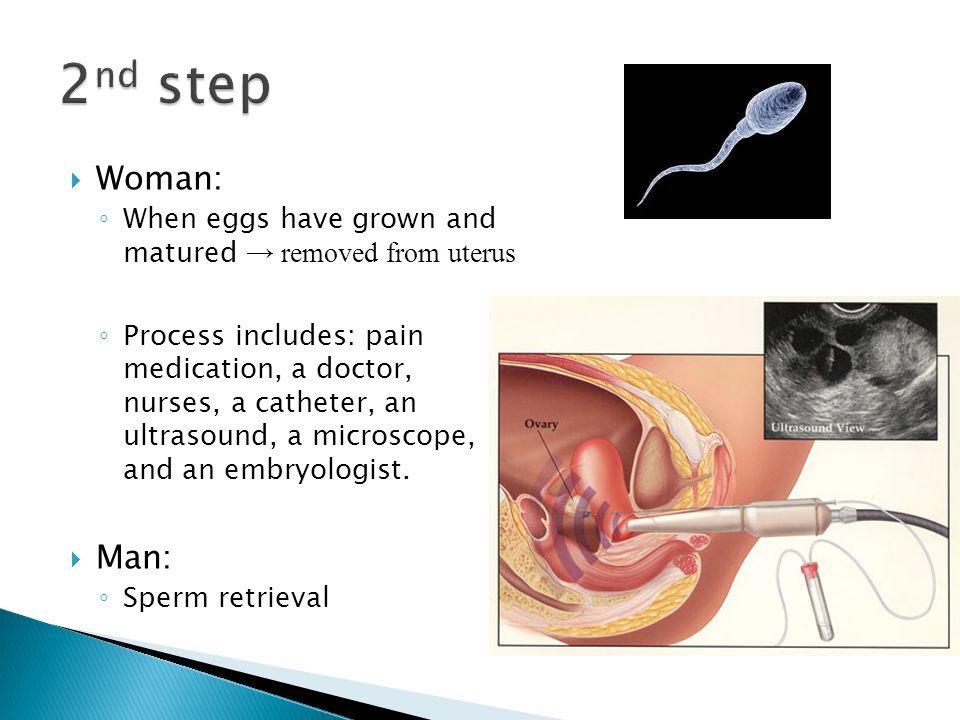 Acupuncture Oct Ivf Women Viagra